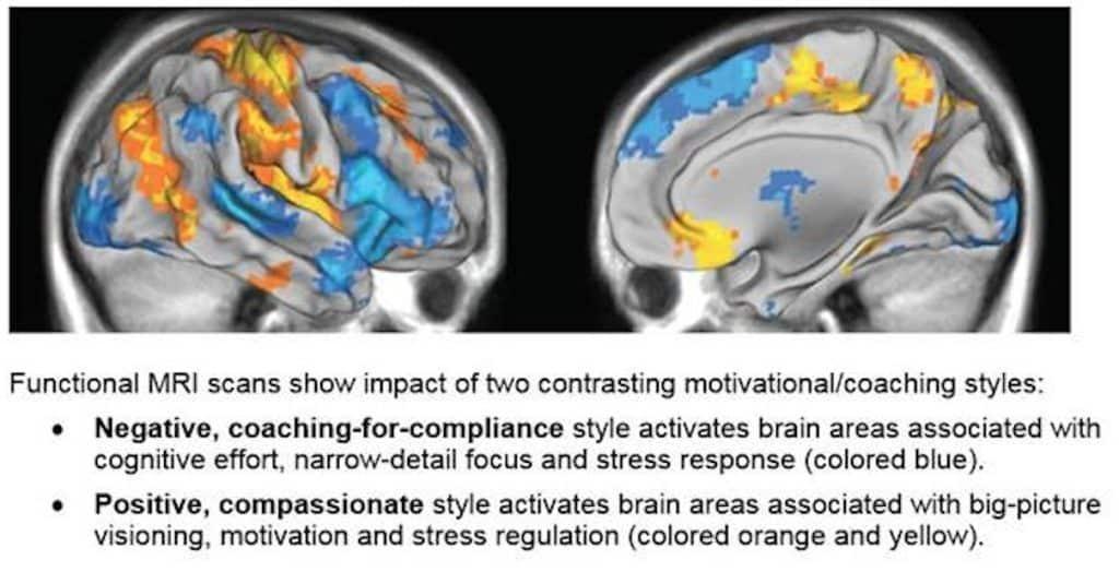 Brain scan on motivatonal differences